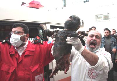 http://schema-root.org/region/middle_east/palestine/people/casualties/children/burnt_palestinian_child.jpg