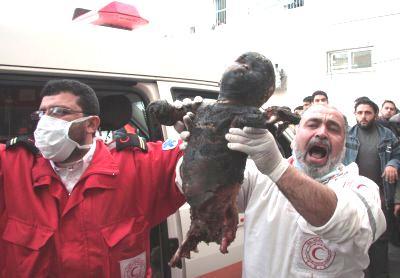 http://schema-root.org/region/middle_east/palestine/people/casualties/children/burnt_palestinian_child.jpg
